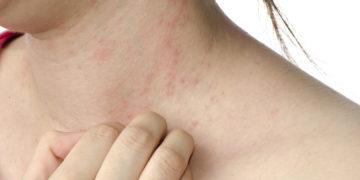 «Alergias» solares, qué debemos conocer